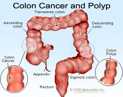 colon cancer resized 600